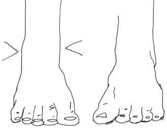 Korrekte Platzierung der Fußknöchel